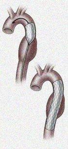 Prezzo di operazione su varicosity di vene